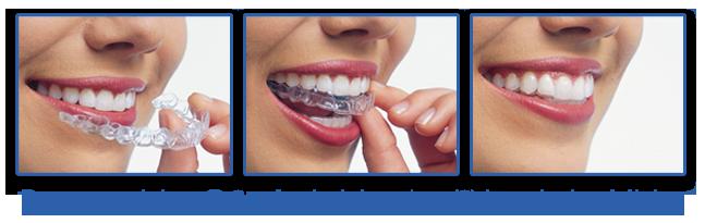 kawaorthodontics-bracesbocaraton-orthodonticskawaorthodontics-florida-orthodontistbocaraton-invisalignbocaraton
